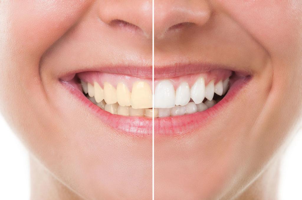 Centre dentaire Chêne-Bourg - Blanqueamiento dental