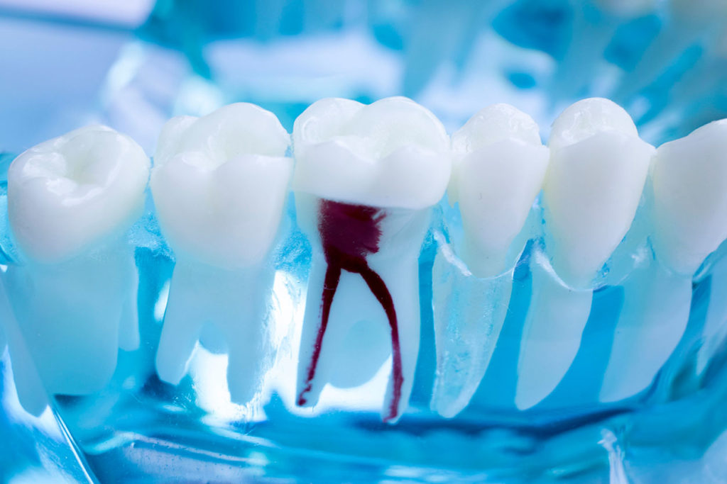 Dental root canal treatment Chêne-Bourg