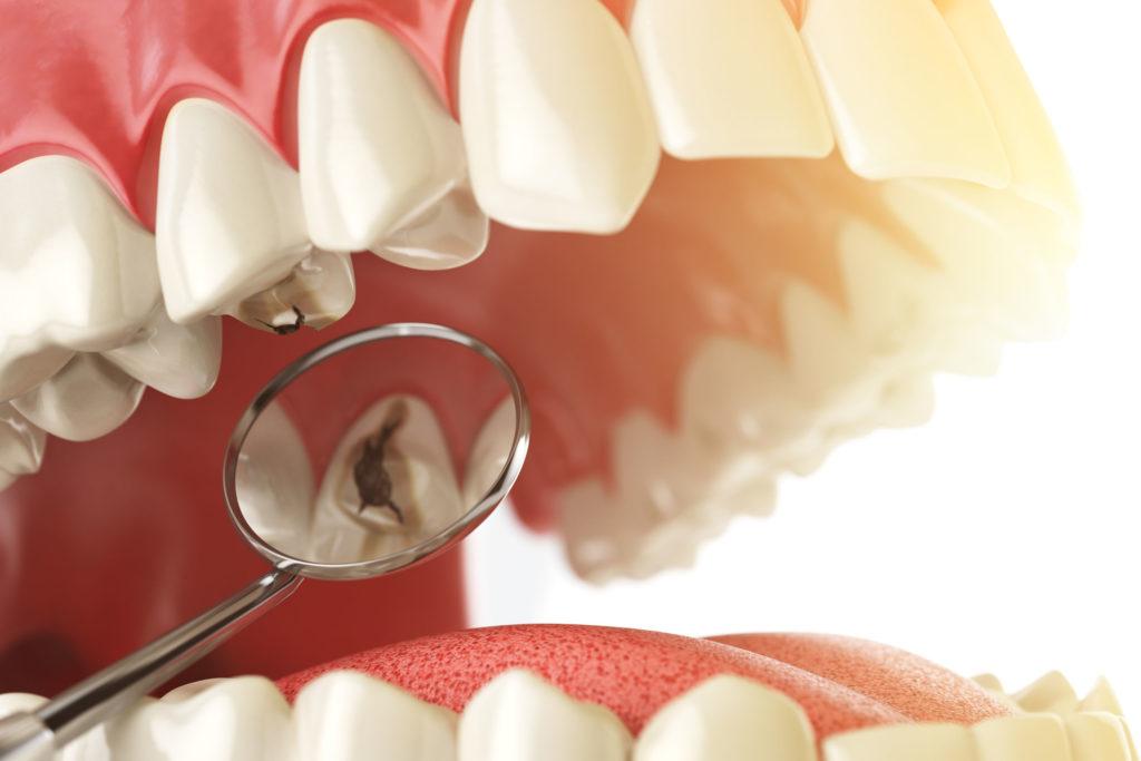 Caries dental Chêne-Bourg