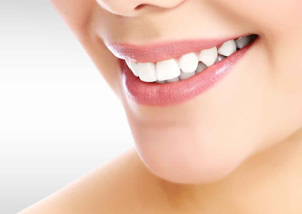 Usure des dents & bruxisme Chêne-Bourg