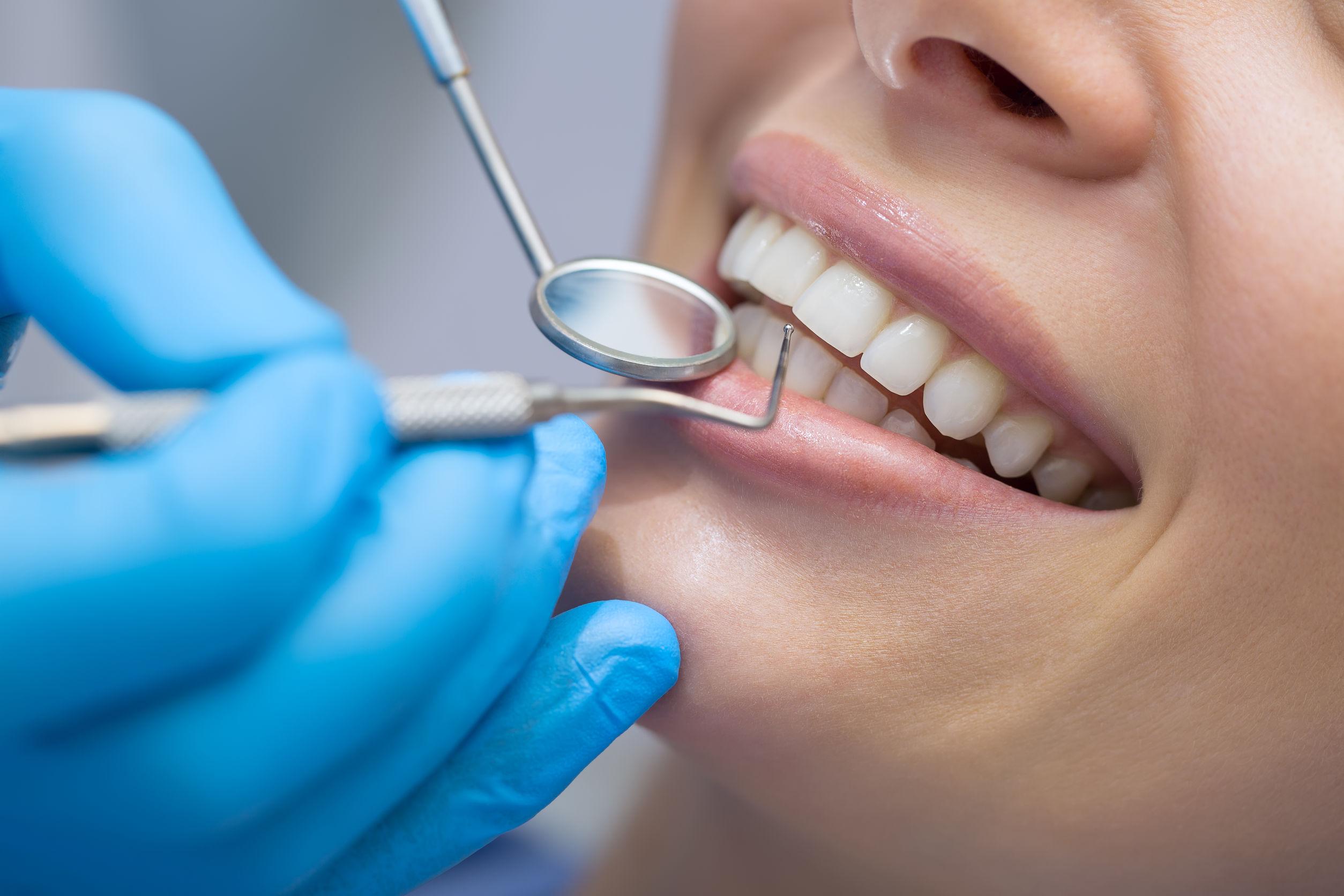 centre dentaire Lancy - Hygiéniste dentaire