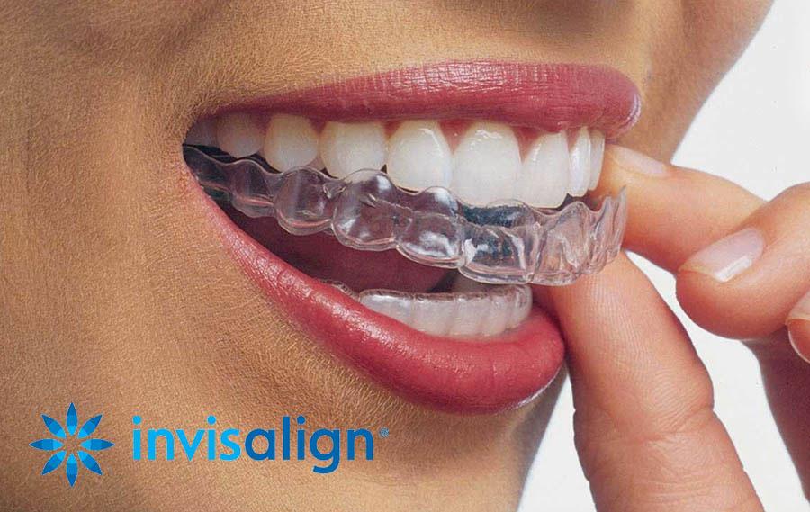Invisalign® Centre Dentaire Chêne-Bourg