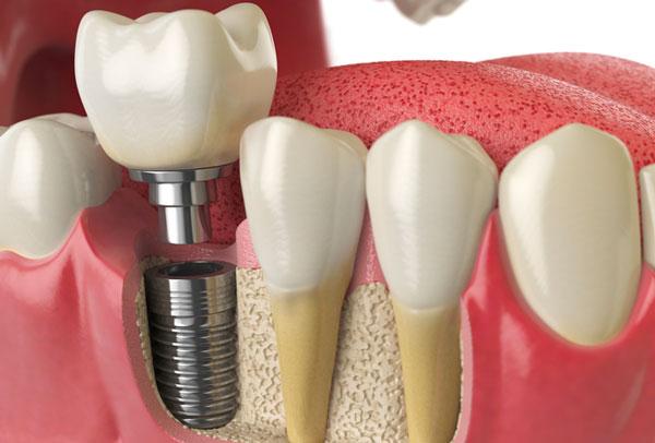 burg channel implant surgery